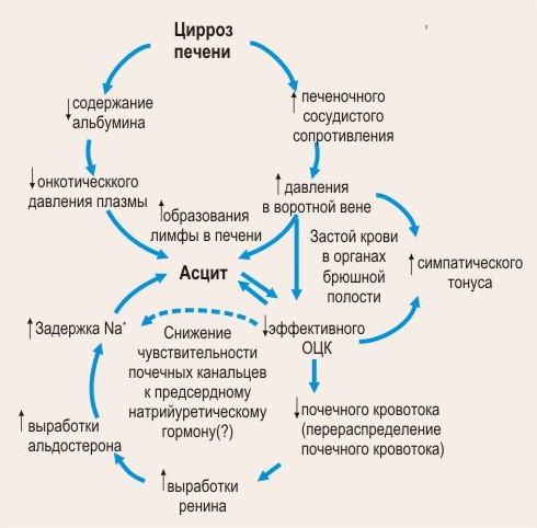 Асцит часто связан с циррозом печени