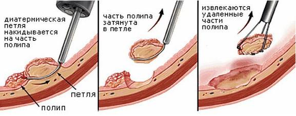 Полипэктомия