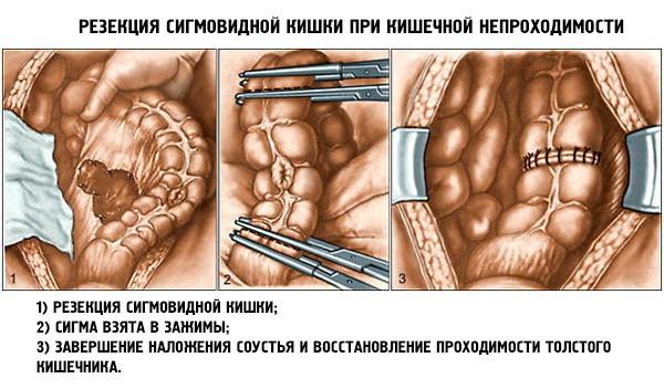 Резекция при острой кишечной непроходимости