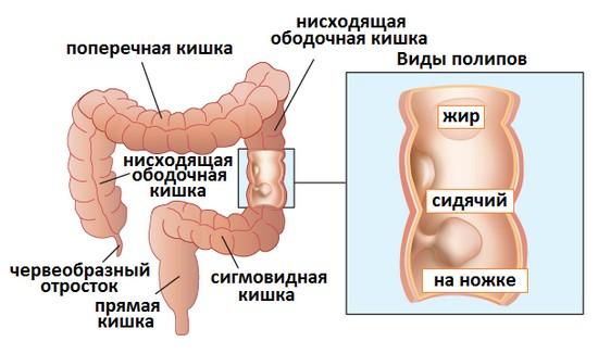 Виды полипов толстой кишки