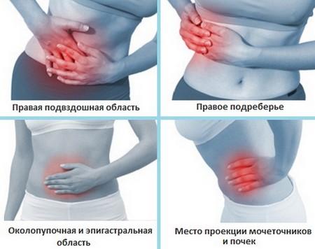 Возможные места локализации боли при аппендиците