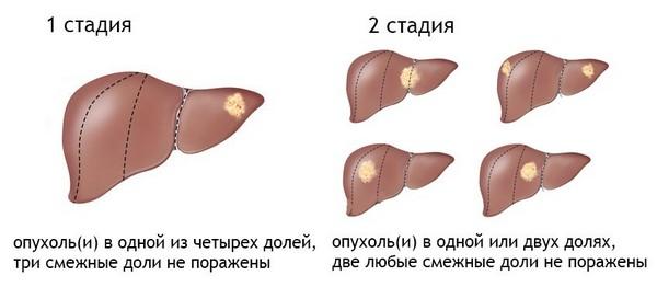 1 и 2 стадии рака печени