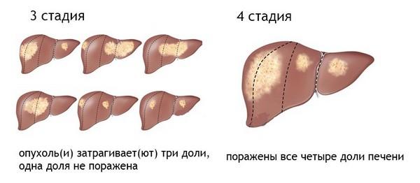 3 и 4 стадии рака печени