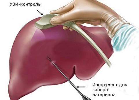 Биопсия печени под контролем УЗИ
