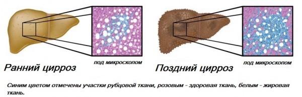 Этапы развития цирроза печени