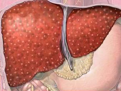 Внешний вид печени при первичном билиарном циррозе