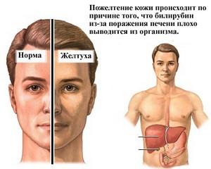 Желтуха при циррозе печени