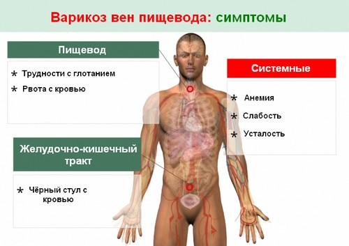 Симптомы варикозного расширения вен пищевода