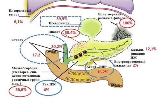Осложнения хронического панкреатита