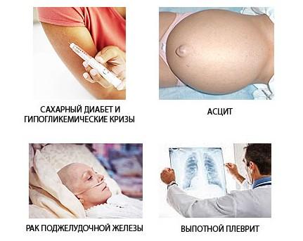 Осложнения паренхиматозного панкреатита