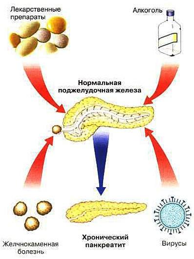 Причины возникновения хронического билиарнозависимого панкреатита
