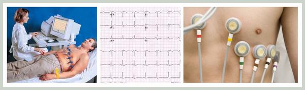 Электроэнцефалография (ЭКГ)
