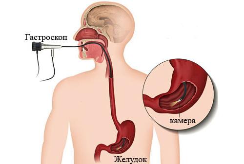 Метод гастроскопия