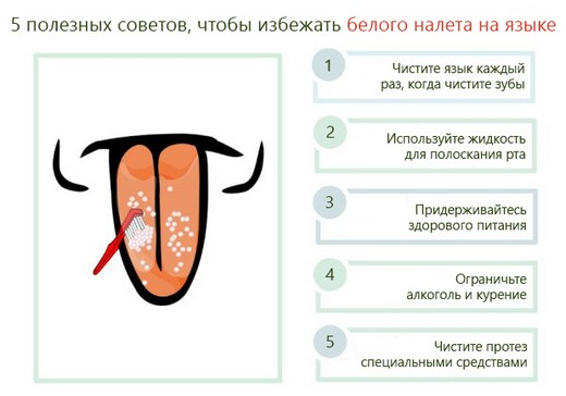Советы по избежанию белого налета на языке
