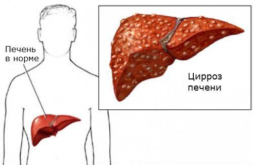 Цирроз печени – возможная причина серо-жёлтого налёта на языке