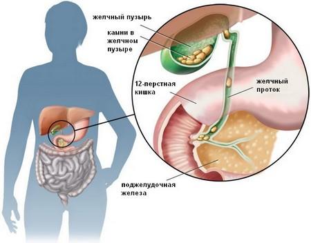 Желчнокаменная болезнь – возможная причина боли в правом подреберье