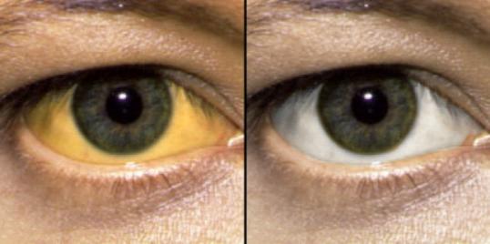 Желтый оттенок глаз и здоровый цвет