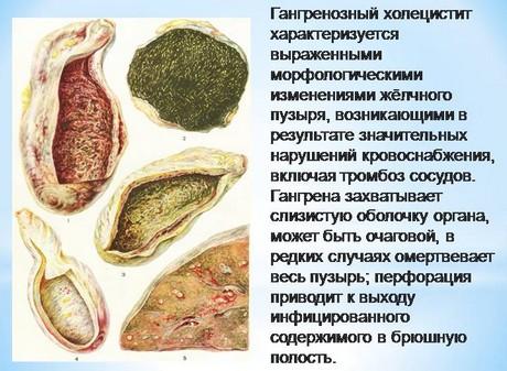 Гангренозный холецистит