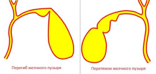 Перетяжка желчного пузыря лечение причины thumbnail