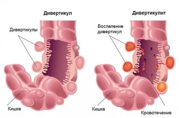 Дивертикулит кишечника