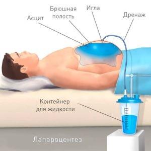 Свободная жидкость в брюшной полости на УЗИ, что это такое