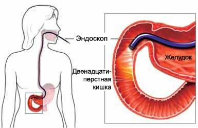 Эндоскопия двенадцатиперстной кишки
