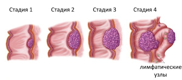 Опухоли и полипы двенадцатиперстной кишки: симптомы и лечение