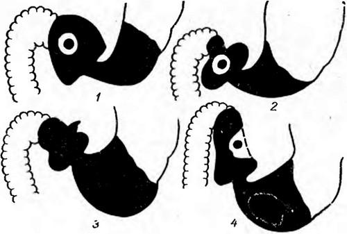 Выпячивание и деформация луковицы 12-перстной кишки