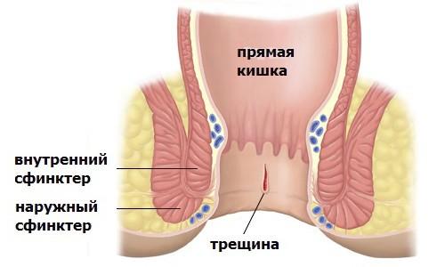 Анальная трещина: причины, признаки, симптомы, лечение