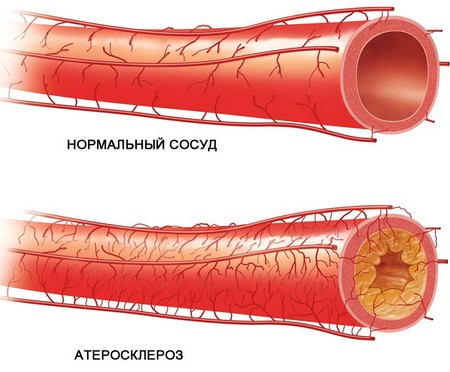 Атеросклероз – возможная причина хронического энтерита