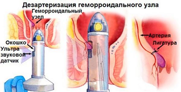 Геморроидальный узел у ребенка фото