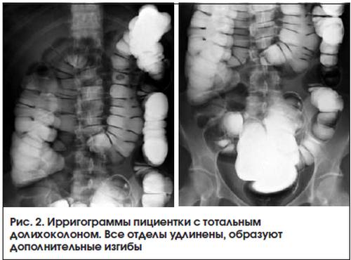 Долихоколон на рентгене
