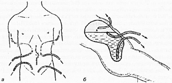 Дренирование брюшной полости