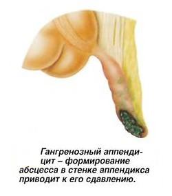 фото гангренозный аппендицит