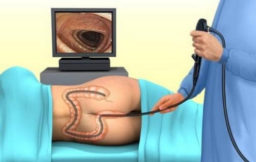 Исследование толстой кишки