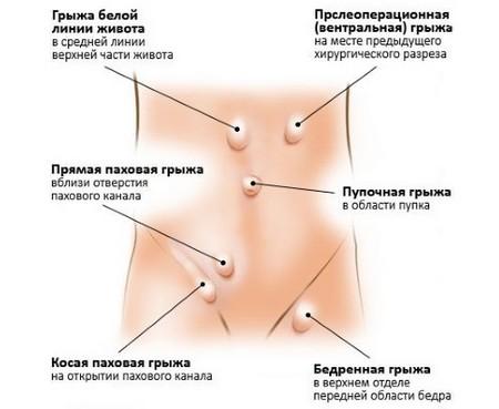Классификация грыж кишечника