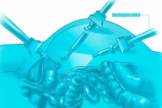 Лапароскопическая аппендэктомия при беременности
