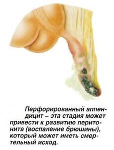 Перфорированный аппендицит