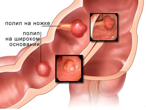 Полипы кишечника