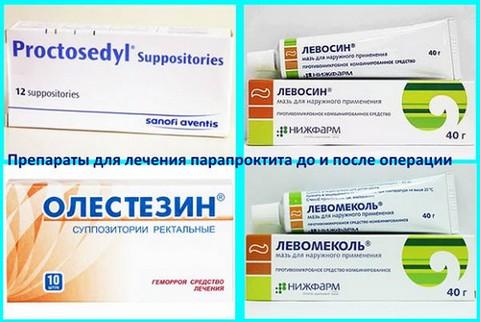 Препараты для лечения парапроктита