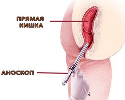 Лечение дисбиоза у грудных детей