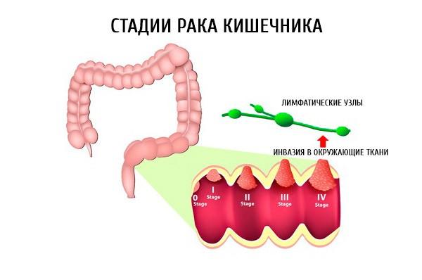 Стадии рака сигмовидной кишки