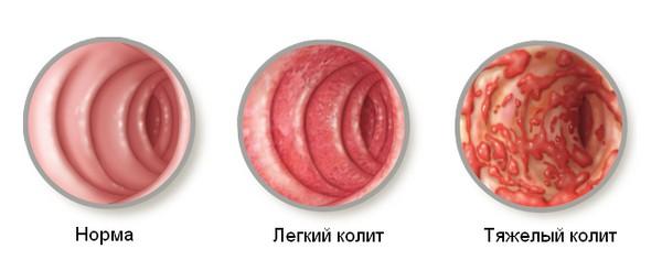 Атрофия кишечника лечение