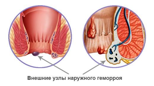 Сильные боли после акта дефекации