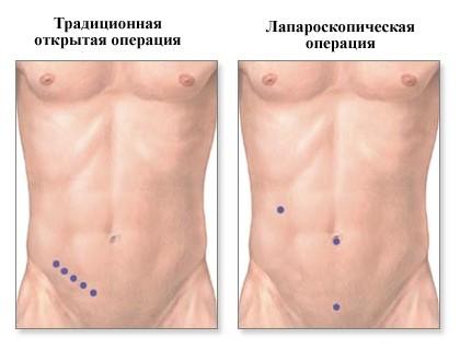 Виды аппендэктомии