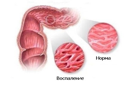 Воспаление кишечника – возможная причина развития полипов в кишечнике