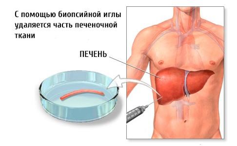 Фульминантный гепатит – причины, симптомы и лечение
