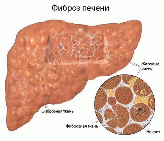 Фиброз 4 степени при гепатите с