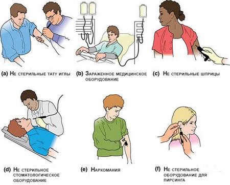 Как передается гепатит В: пути передачи и заражения