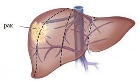 Как отличить острую форму от хронической при гепатите